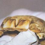 Deformiran sekalec na desni je mlečni zob, ki ni nikoli izpadel